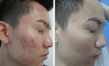 男生青春痘治疗方法 男性痤疮的治疗方法