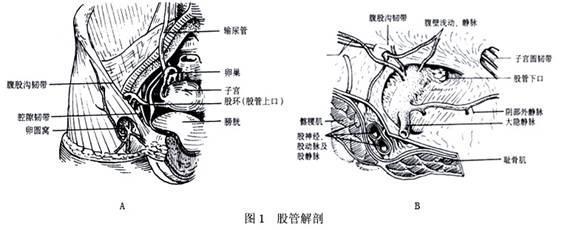 股疝症状 股疝 股疝-疾病病因,股疝-疾病症状