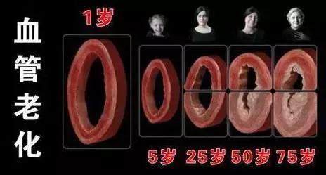 你的血管還好嗎,堵了嗎?自己摸摸這里就能知道!內附沖洗血栓法